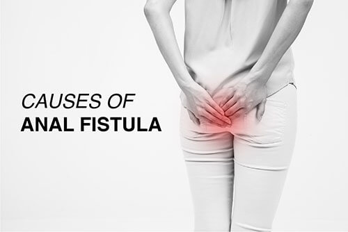 what causes a fistula