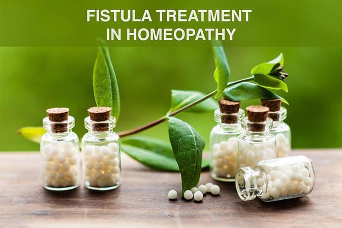 homeopathy fistula treatment
