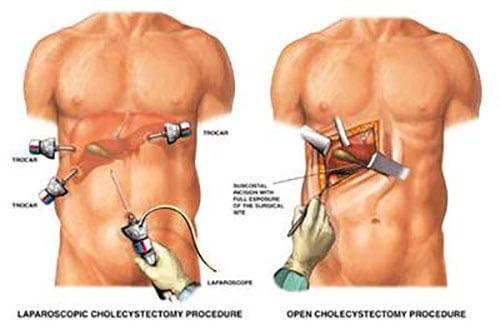 surgeon removes the gallbladder