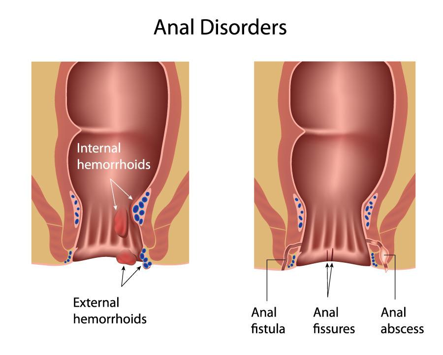 pile vs fissure