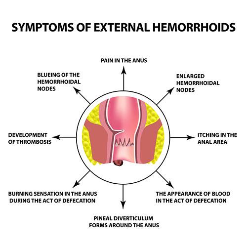 External symptoms