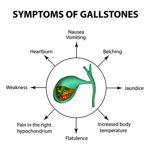 Symptoms of gallstones