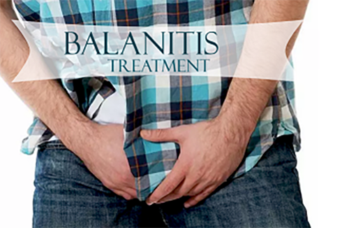 treatment for balanitis