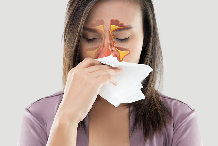 A girl with sinus