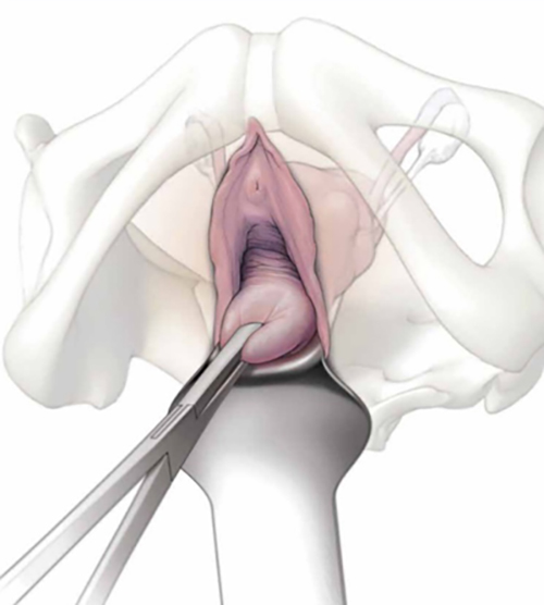 Side effects of Vaginal Hysterectomy