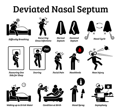 a pictorial representation of symptoms and treatments of deviated septum