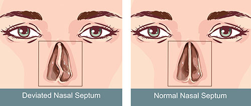 Difference between normal and deviated nasal septum