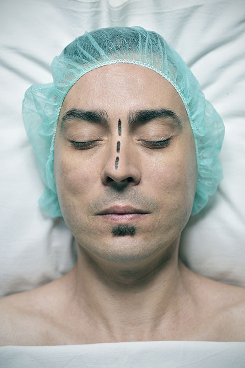 image of a patient ready to undergo the surgery