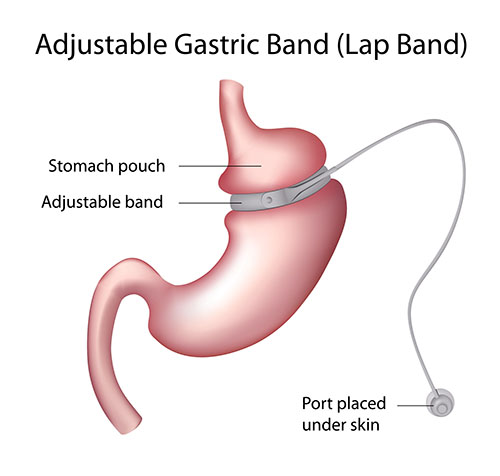 Know more about Gastric surgery