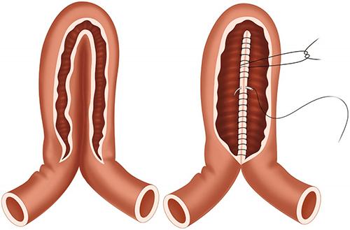 bowel strictureplasty