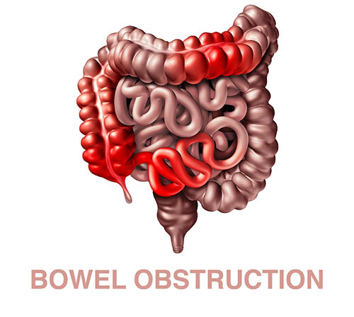 cause of bowel obstruction
