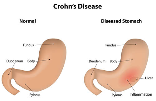 Defect Crohn's disease
