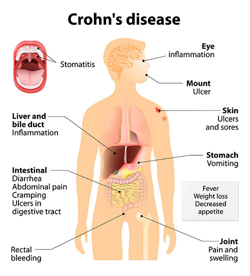 Crohn's affecting GI
