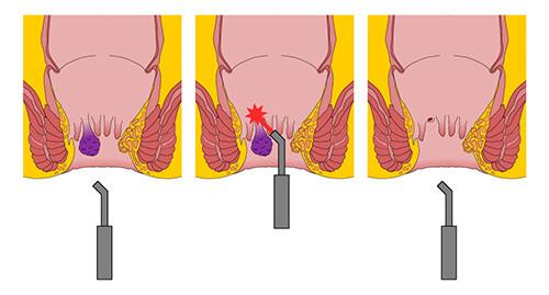 Painless piles treatment