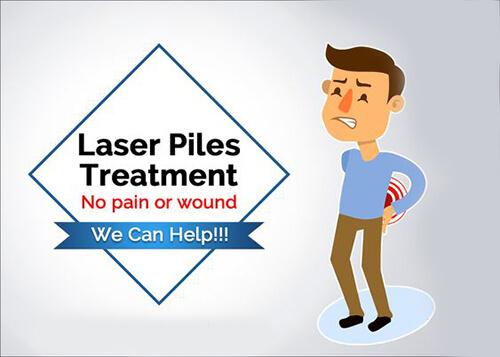piles treatment 100% painless