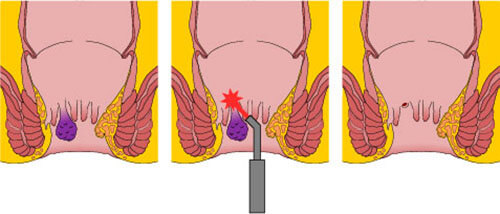 portraying a close image of a laser fissure treatment