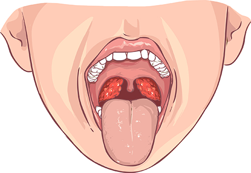 Tonsil or adenoid infection