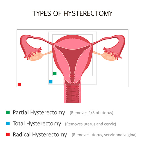 Types of hysterectomies