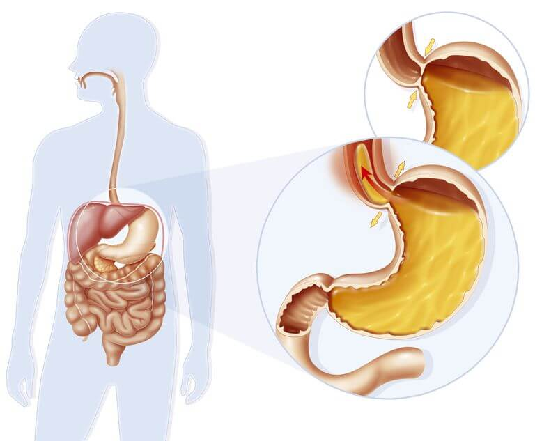 Achalasia Disorders, Its Causes & Symptoms