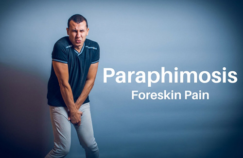 paraphimosis treatment