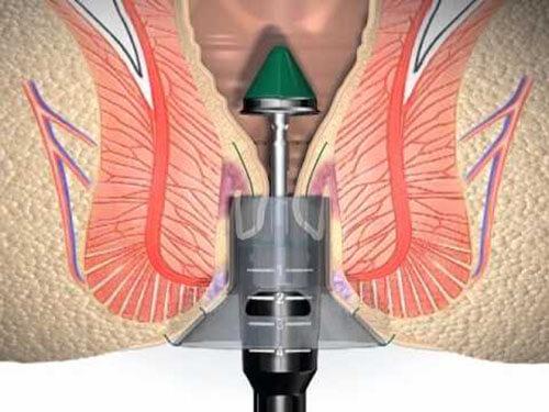 painless Piles Surgery