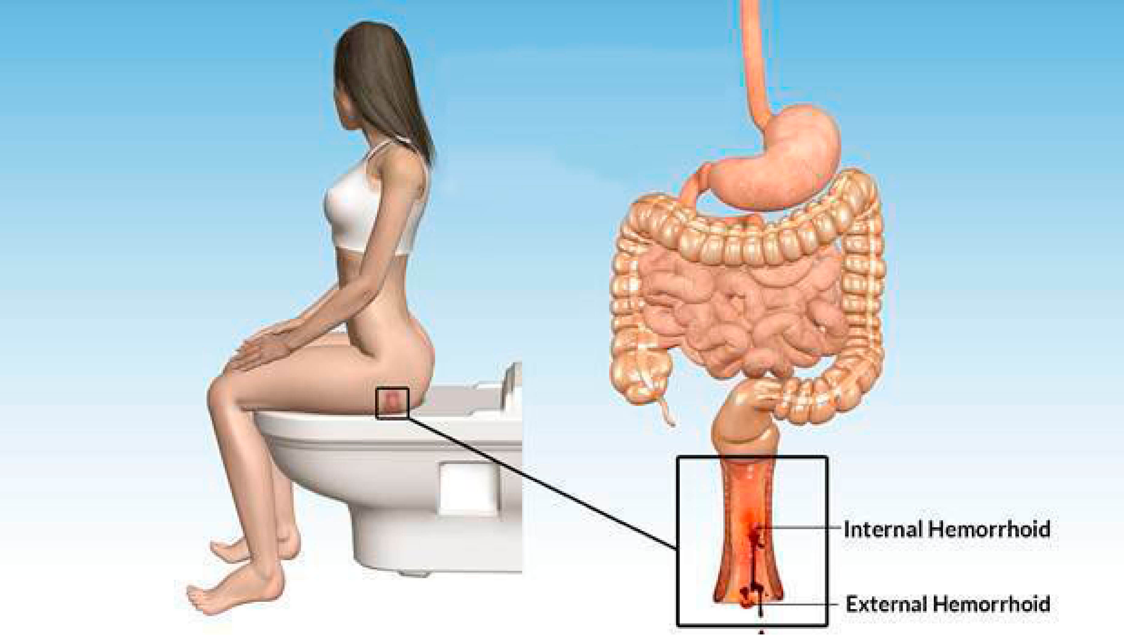 bleeding from hemorrhoids while passing stool