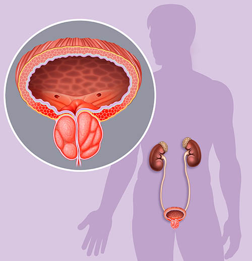 prostate enlargement problems