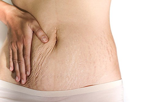 woman's stomach area with stretch marks