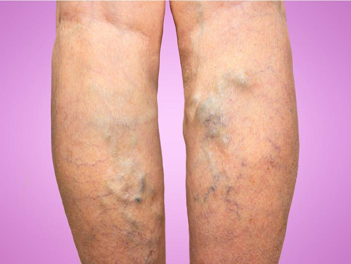 stockings in vericose veins
