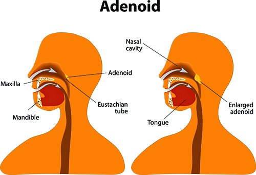 Enlarged adenoidectormy