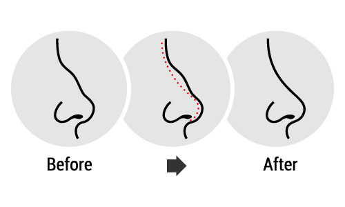 an image showing the before and after scenario for a nose
