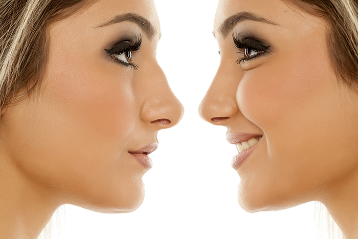 an image showing the difference between a straight nose and a deviated nose