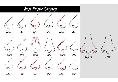 an image showing several nose plastic surgery for different types of nose