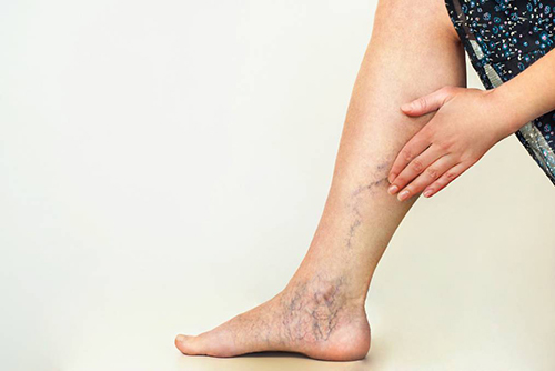 Here are the ten best ways to prevent varicose veins