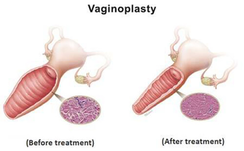pictorial representation  of the benefits of vaginoplasty