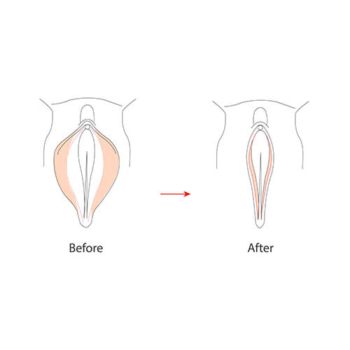 vaginoplasty before and after pictorial representation