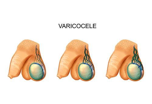diagnosis of varicocele