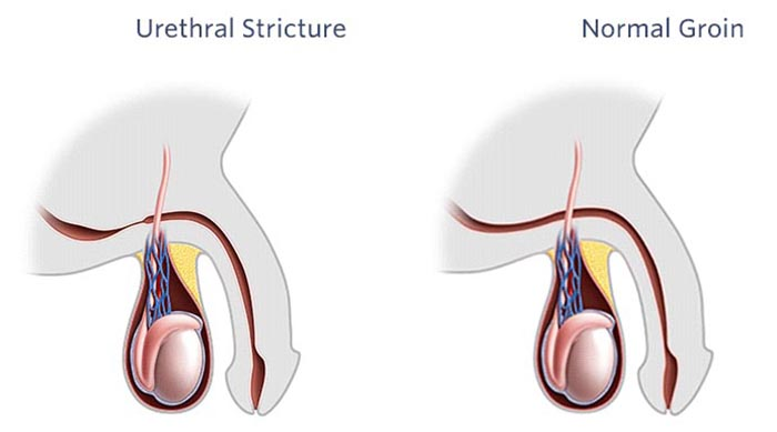 Treat Urethral Stricture at Home