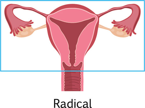 radical hysterectomy know about