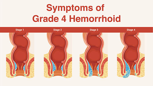 hemorrhoid causes and symptoms