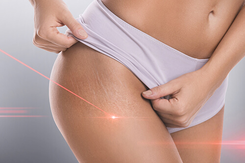 laser treatment on stretch marks on thighs of a female