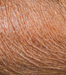 Uneven skin tone or texture