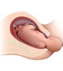 Normal vaginal deliveries