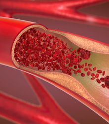 Retarded cell regeneration or poor blood flow at the genitalia