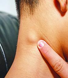 Swollen glands in the neck