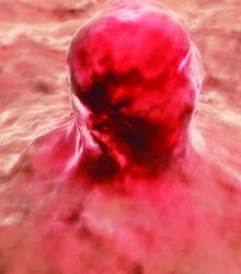 Cancerous Tumor or parasites