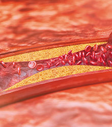 Clogged blood vessels (atherosclerosis)