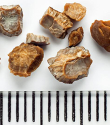 Diet can cause Kidney Stones
