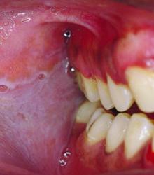 Cancerous and precancerous lesions