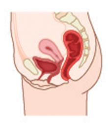Prolapsed bladder